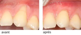 déchaussement dents traitement naturel